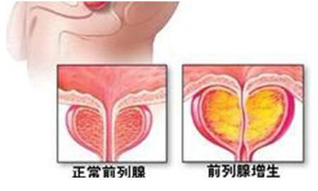 《黑龙江哪家医院治前列腺肥大专业》