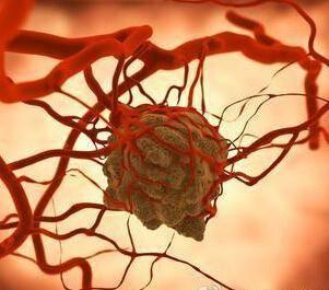哈尔滨专治疗胶质长瘤的医院