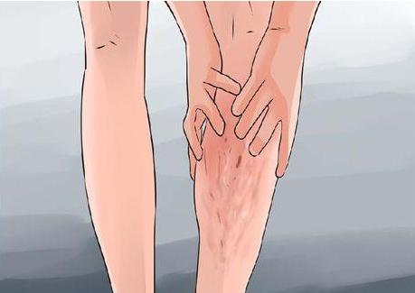 《哈尔滨治疗腿部静脉曲张好》