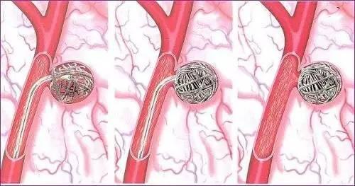 哈尔滨哪家看胸主动脉瘤正规