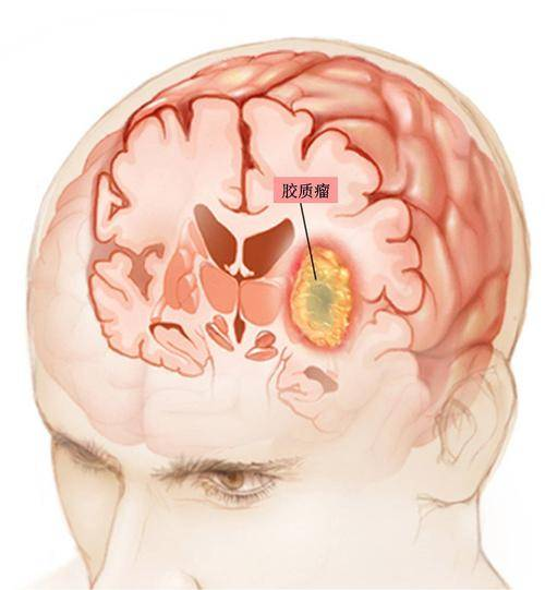 哈尔滨脑胶质瘤治疗多少费用?