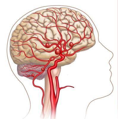 哈尔滨哪个医院能治脑动脉长瘤?