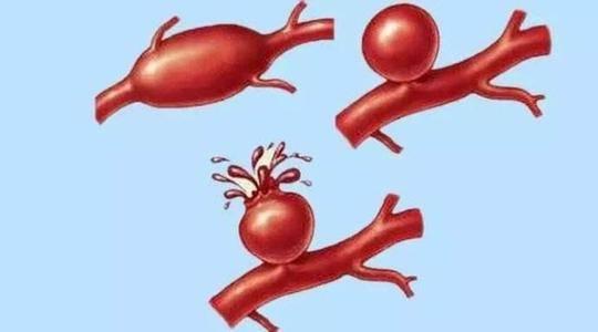《哈尔滨脑动脉瘤治疗哪家医院强》