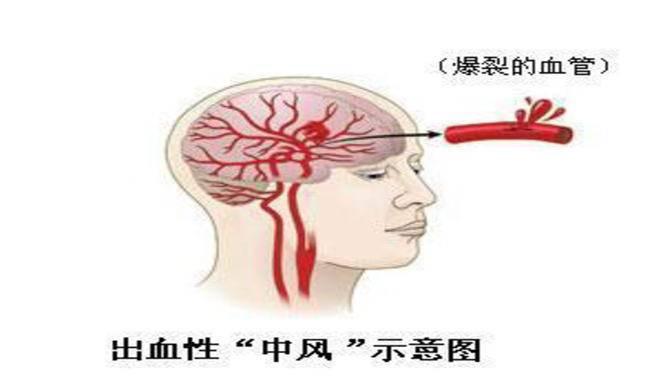 哈尔滨治疗脑出血手术价格
