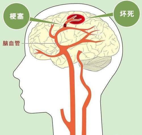 哈尔滨治疗脑梗塞去哪家比较好