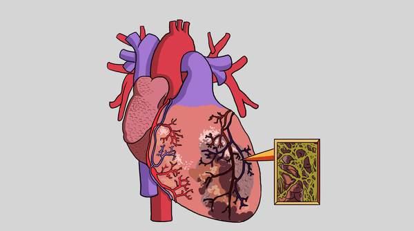 哈尔滨做心脏疾病检查医院