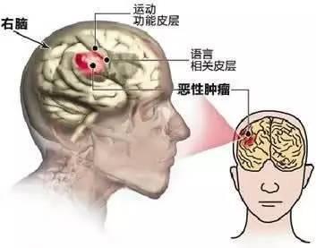 哈尔滨专业治疗脑胶质瘤医院