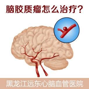 哈尔滨市治疗脑胶质瘤