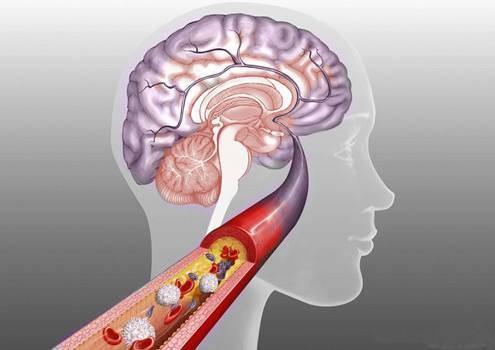 哈尔滨哪家医院能治疗脑长瘤