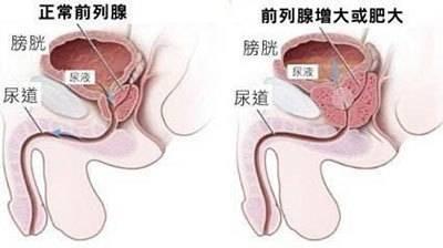 《黑龙江哪个医院治前列腺肥大专业》
