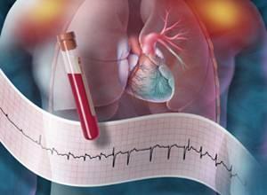 哈尔滨看心脏科有哪些医院
