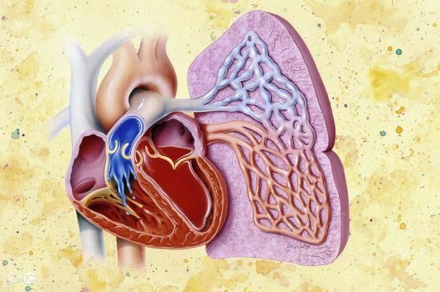 哈尔滨扩张型心肌病手术得多钱