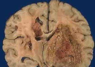 哈尔滨胶质长瘤的专治医院