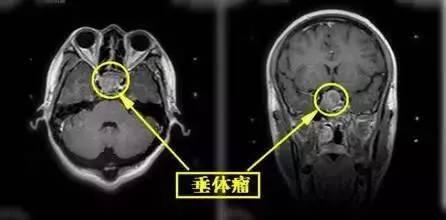 哈尔滨哪治疗的脑垂体瘤好