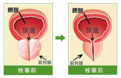 《哈尔滨看前列腺增生费用》