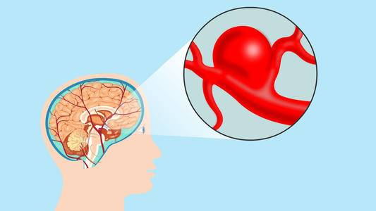 哈尔滨脑动脉长瘤医院专科