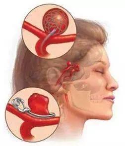 《哈尔滨脑动脉长瘤手术治疗费用》