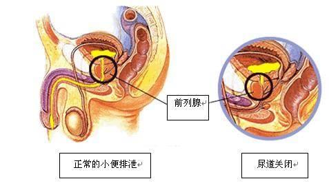 《哈尔滨看前列腺增生去哪》