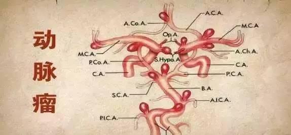哈尔滨治脑动脉长瘤手术医院