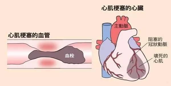 哈尔滨心梗初期治疗