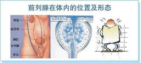 《哈尔滨前列腺增生微创手术费》
