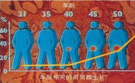 《黑龙江哪家医院看前列腺增生口碑好》