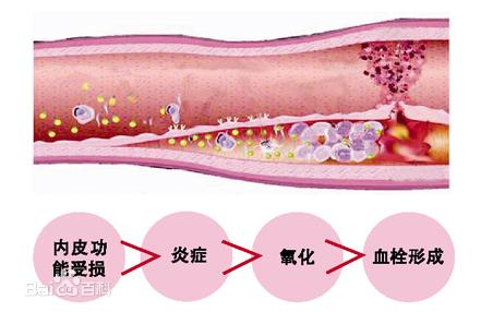 下肢动脉血栓怎么办
